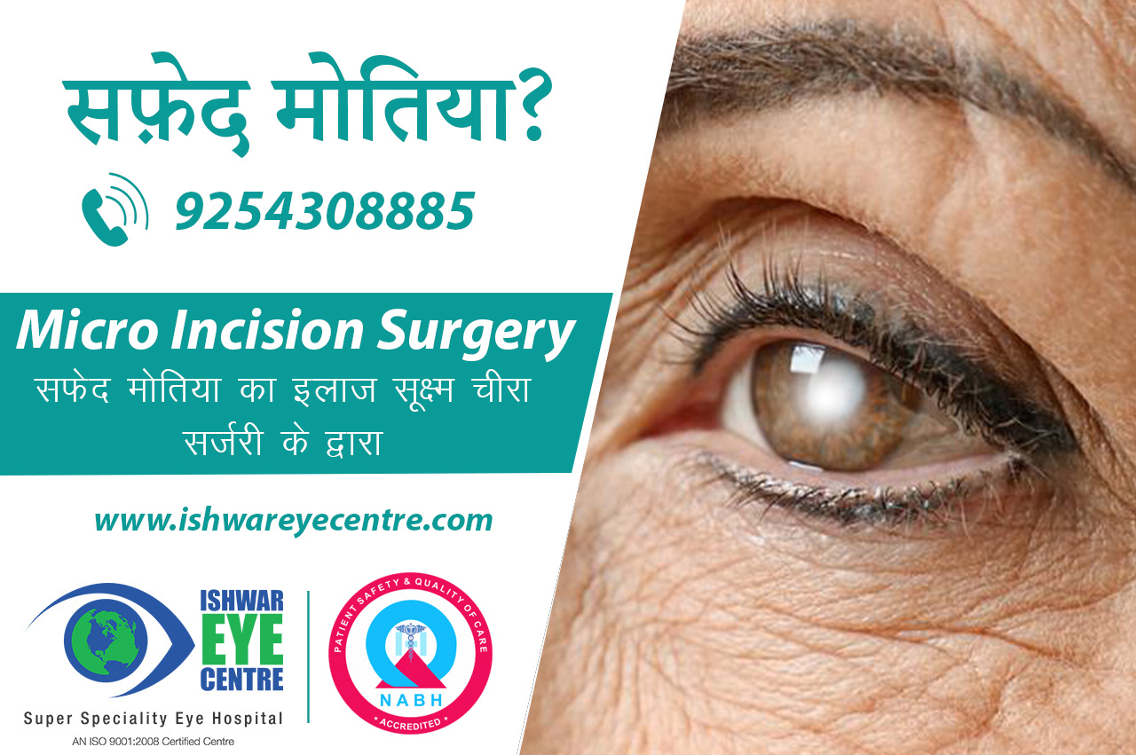 Best Cataract Surgery in Delhi NCR