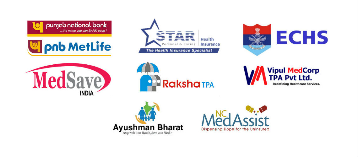 List Of Insurance Policies, TPA accepted at Ishwar Eye Centre